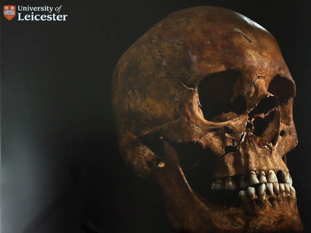 Make No Bones About It! Scientists Identify King Richard III's Skeletal Remains