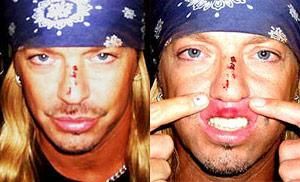 Bret Michaels Changes His Tune After Tony Night Injury